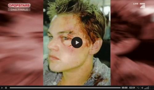 Gesichtsverletzung